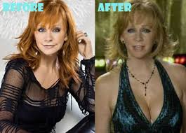 Reba McEntire Plastic Surgery Before After Pict...