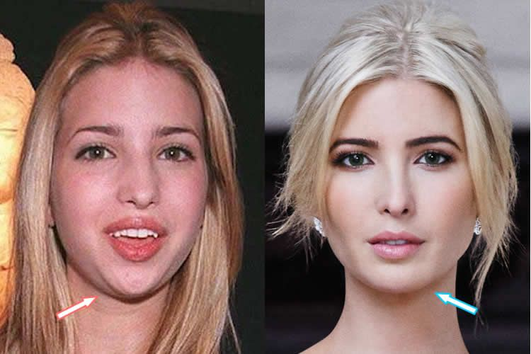 celeb plasticsurgery 24ec7edc11fefe53c72c996b53ac042b 20201203 Has Ivanka Trump had a Plastic Surgery? November 1, 2020