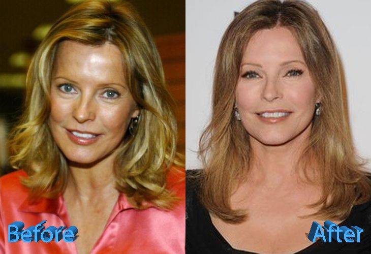celeb plasticsurgery 26f35a522db811139fe59c5353234628 20201203 Has Cheryl Ladd Had Plastic Surgery? November 3, 2020