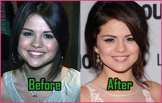 Details about Selena Gomez's plastic surgery