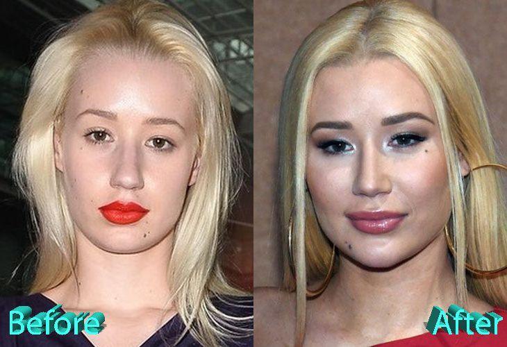 celeb plasticsurgery 7085eca7c7f8a5a464b944c76d1e4dc1 20201203 Iggy Azalea Before and After Plastic Surgery November 4, 2020