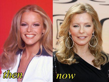 celeb plasticsurgery Cheryl Ladd Plastic Surgery Before and After 20201203 Has Cheryl Ladd Had Plastic Surgery? November 3, 2020