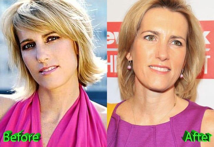 celeb plasticsurgery Laura Ingraham Plastic Surgery Before and After 20201203 Laura Ingraham before and after plastic surgery October 30, 2020