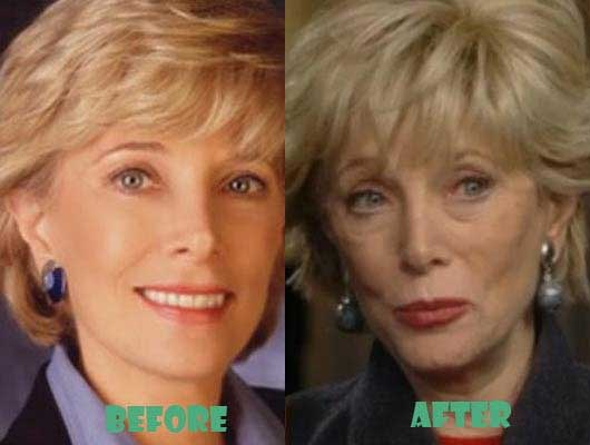 celeb plasticsurgery Lesley Stahl 20201203 Leslie Stahl Before and After Plastic Surgery November 4, 2020