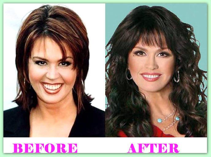 celeb plasticsurgery Marie Osmond Plastic Surgery Before After 20201203 Marie Osmond Plastic Surgery December 1, 2020