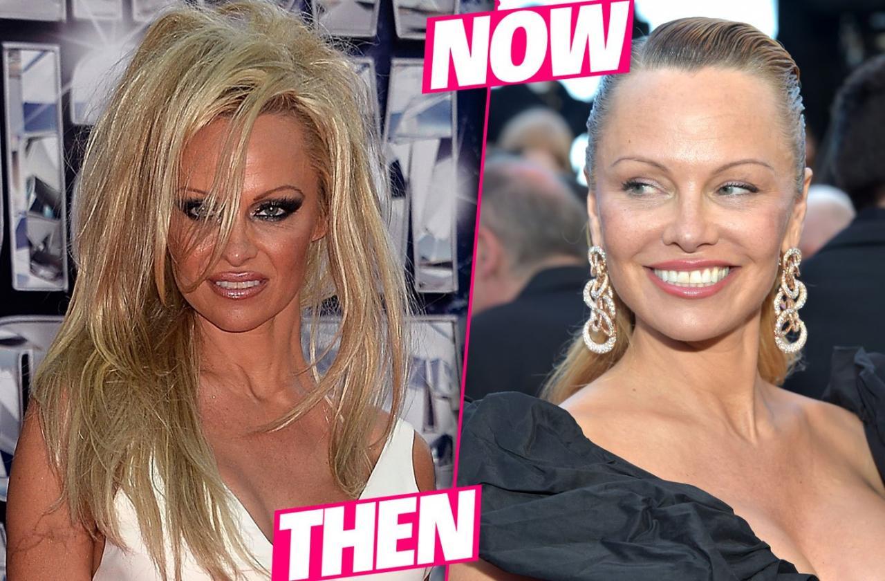 celeb plasticsurgery Pamela Anderson Before After Plastic Surgery pp 20201203 Pamela Anderson before and after plastic surgery October 28, 2020