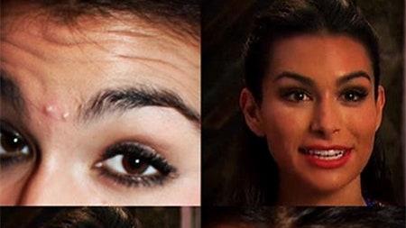 celeb plasticsurgery beauty trends blogs daily beauty reporter 2015 09 02 botox ashley i 20201203 Ashley Iaconetti Plastic Surgery November 26, 2020