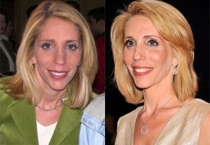 celeb plasticsurgery cb2a4d5cb6aff4668f0f15193c94d69c 20201203 Dana Bash before and after Plastic Surgery November 10, 2020