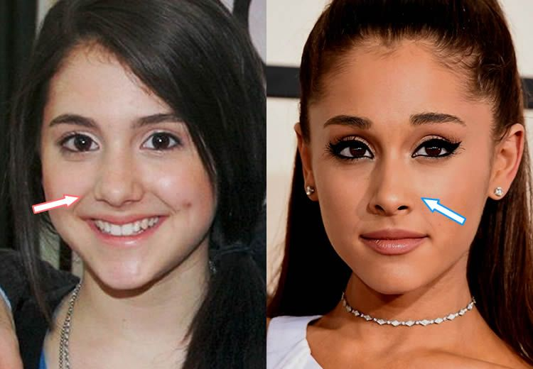 What you need t know about Ariana Grande's plastic surgery