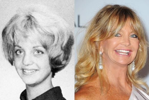 celeb plasticsurgery fed5c028008bfe7c609ae3949727b4db 20201203 Goldie Hawn plastic surgery November 22, 2020