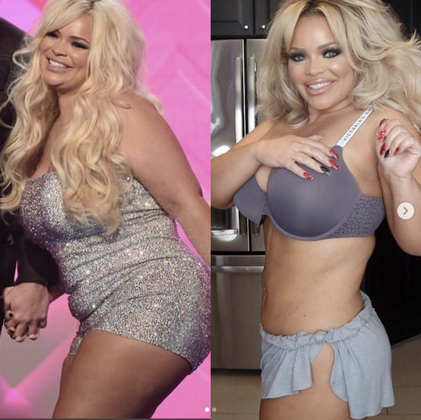 All You Need To Know Trisha Paytas' Plastic Surgery