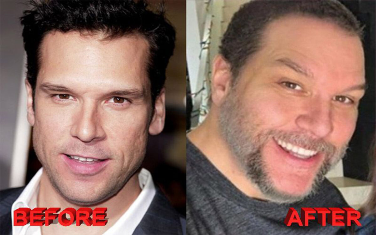 Do you think Dane Cook has had a plastic surgery?