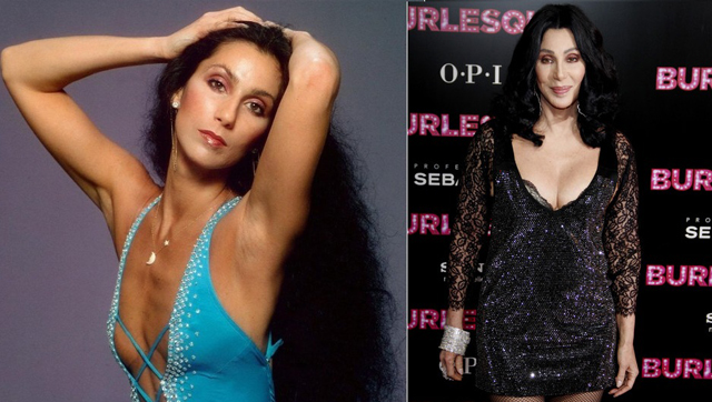 Cher has had several plastic surgeries. Here are the details