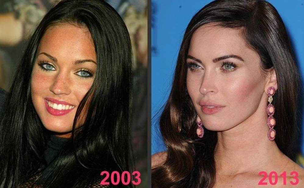 Do you think Megan Fox has had plastic surgery?