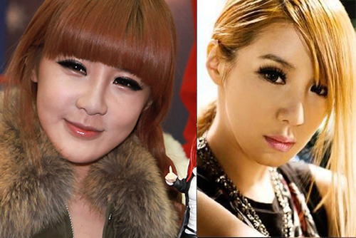 What you need to know about Park Bom plastic surgery