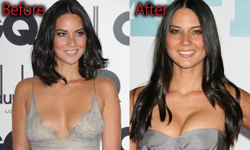 Olivia Munn shocking plastic surgery details