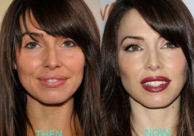 Did Whitney Cummings have plastic surgery? Here are the details