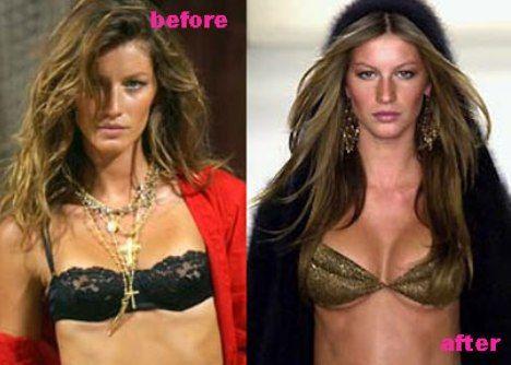 Details about Gisele Bündchen plastic surgery