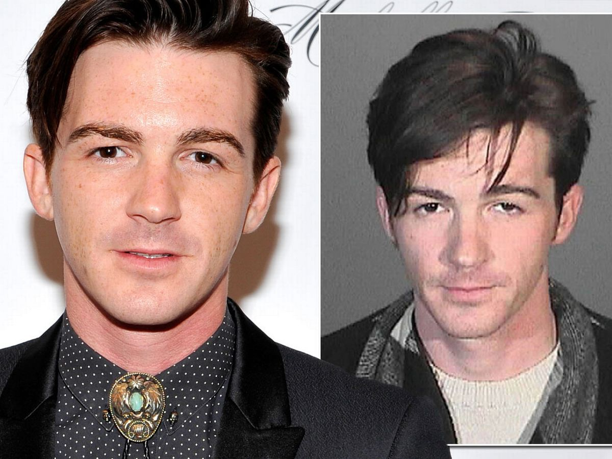 Are rumours about Drake Bell's plastic surgery true?