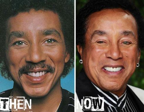 Do you think Smokey Robinson has had plastic surgery?