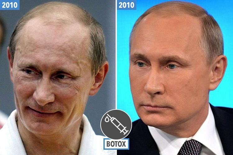 Did Vladimir Putin have plastic surgery?