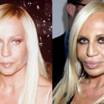 List of Celebrity Who Had Worst Plastic Surgery