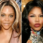 Lil' Kim Had The Worst Celebrity Plastic Surgery Before And After