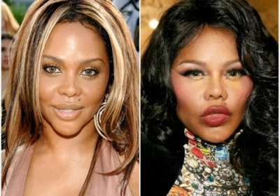Lil' Kim Before and After Plastic Surgery